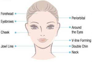 diagram of female face and treatment zones