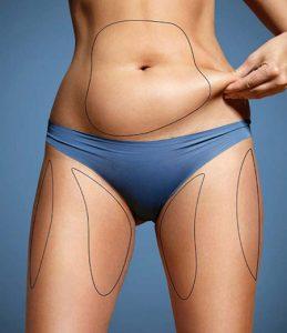 Girl pinching her stomach fat